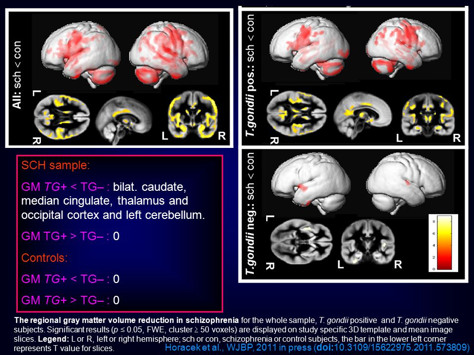 The regional gray matter volume reduction in schizophrenia for the whole sample, T. gondii positive and T. gondii negative subjects. Significant resul