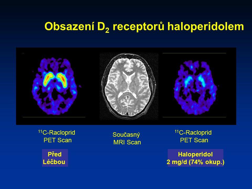 Obsazení D 2 receptorů haloperidolem 11 C-Racloprid PET Scan Současný MRI Scan Před Léčbou Haloperidol 2 mg/d (74% okup.) 11 C-Racloprid PET Scan