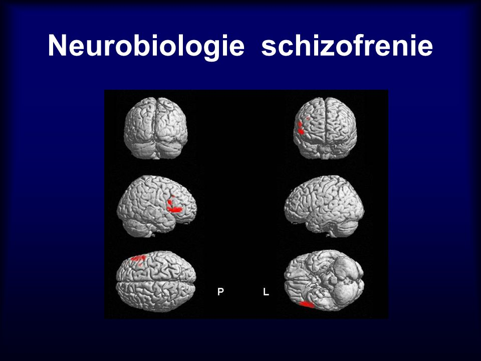 The regional gray matter volume reduction in schizophrenia for the whole sample, T.