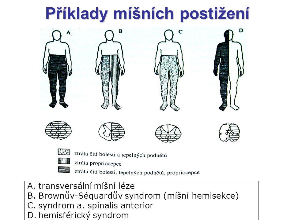 A.transversální míšní léze B.Brownův-Séquardův syndrom (míšní hemisekce) C.syndrom a. spinalis anterior D.hemisférický syndrom Příklady míšních postiž