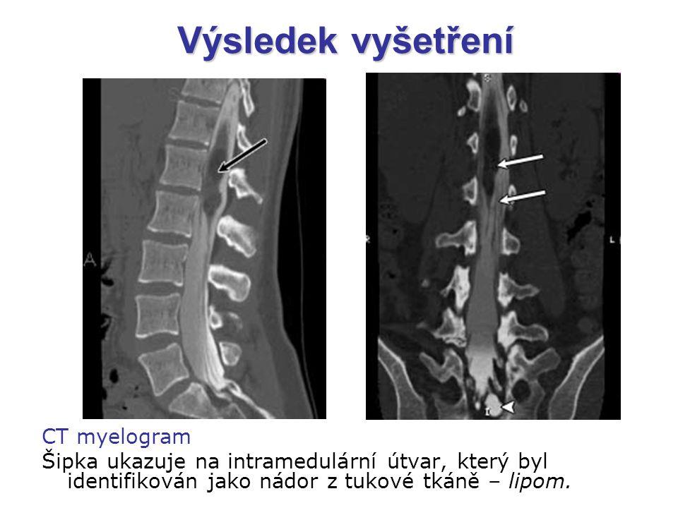 Výsledek vyšetření CT myelogram Šipka ukazuje na intramedulární útvar, který byl identifikován jako nádor z tukové tkáně – lipom.