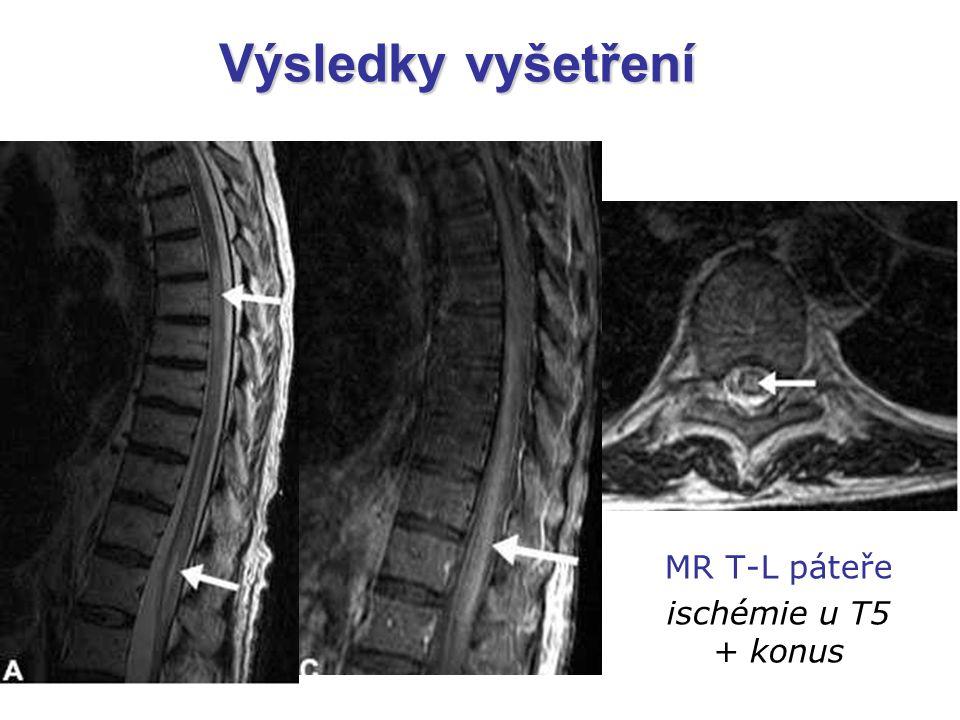 Výsledky vyšetření MR T-L páteře ischémie u T5 + konus