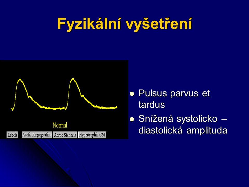 Fyzikální vyšetření Pulsus parvus et tardus Pulsus parvus et tardus Snížená systolicko – diastolická amplituda Snížená systolicko – diastolická amplituda