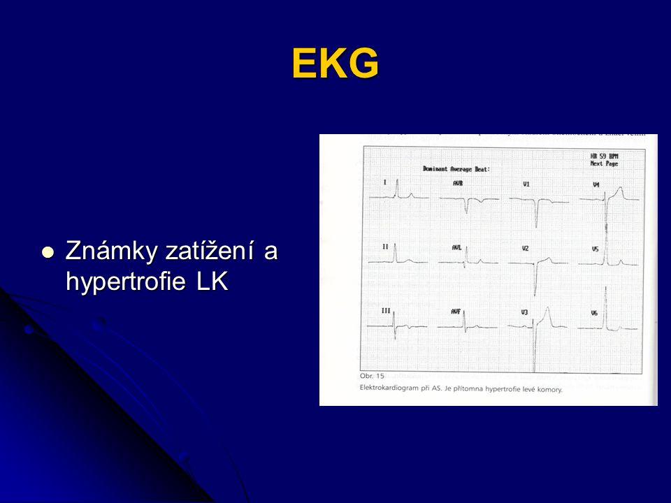 EKG Známky zatížení a hypertrofie LK Známky zatížení a hypertrofie LK