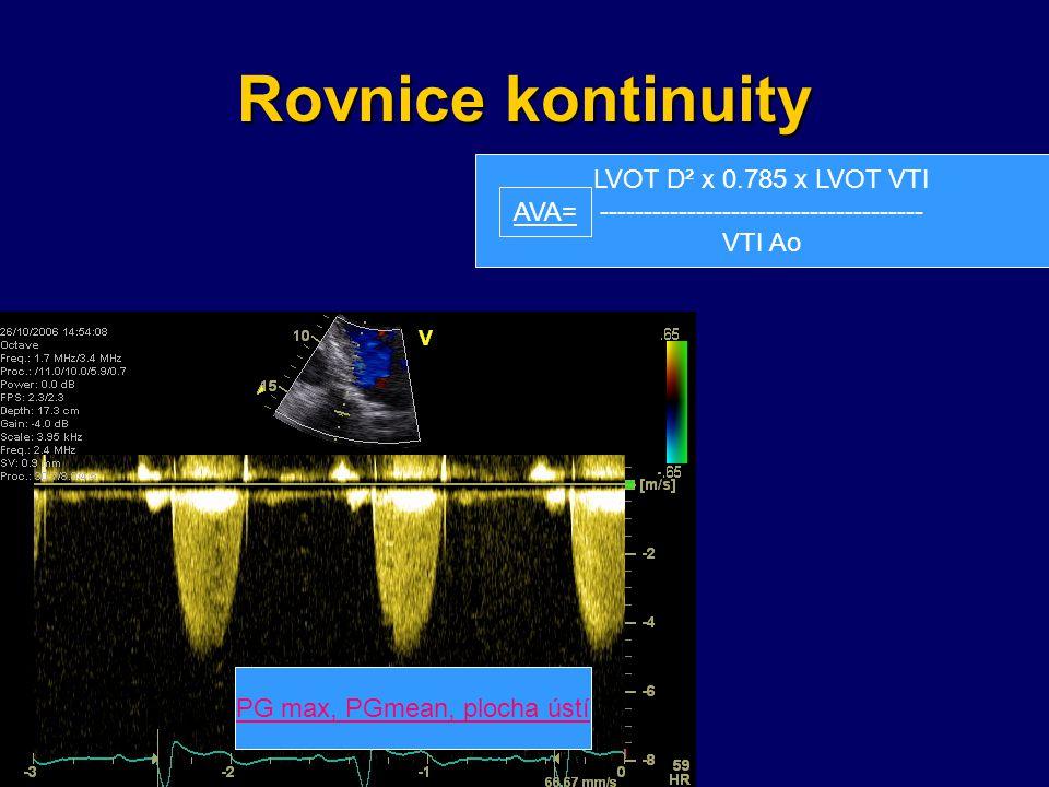 Rovnice kontinuity PG max, PGmean, plocha ústí LVOT D² x 0.785 x LVOT VTI ------------------------------------- VTI Ao AVA=