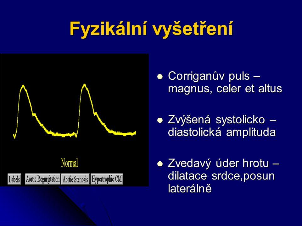 Fyzikální vyšetření Corriganův puls – magnus, celer et altus Corriganův puls – magnus, celer et altus Zvýšená systolicko – diastolická amplituda Zvýšená systolicko – diastolická amplituda Zvedavý úder hrotu – dilatace srdce,posun laterálně Zvedavý úder hrotu – dilatace srdce,posun laterálně