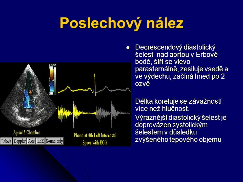 Poslechový nález Decrescendový diastolický šelest nad aortou v Erbově bodě, šíří se vlevo parasternálně, zesiluje vsedě a ve výdechu, začíná hned po 2 ozvě Decrescendový diastolický šelest nad aortou v Erbově bodě, šíří se vlevo parasternálně, zesiluje vsedě a ve výdechu, začíná hned po 2 ozvě Délka koreluje se závažností více než hlučnost.