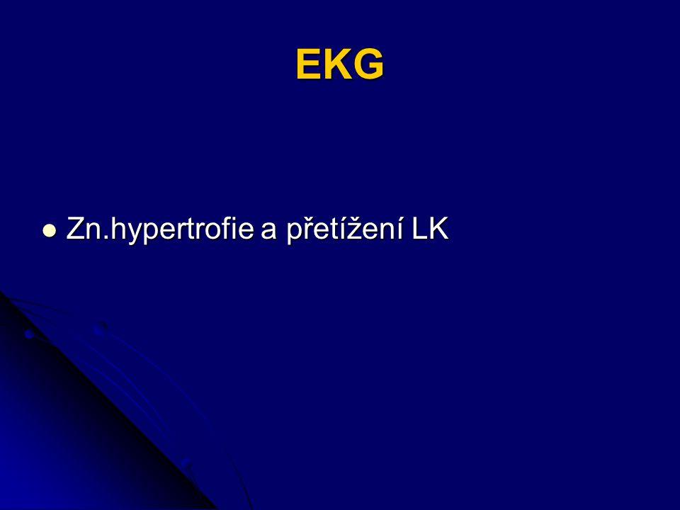 EKG Zn.hypertrofie a přetížení LK Zn.hypertrofie a přetížení LK