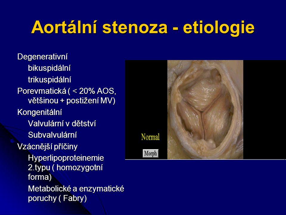 Aortální stenoza - etiologie Degenerativníbikuspidálnítrikuspidální Porevmatická ( < 20% AOS, většinou + postižení MV) Kongenitální Valvulární v dětství Subvalvulární Vzácnější příčiny Hyperlipoproteinemie 2.typu ( homozygotní forma) Metabolické a enzymatické poruchy ( Fabry)