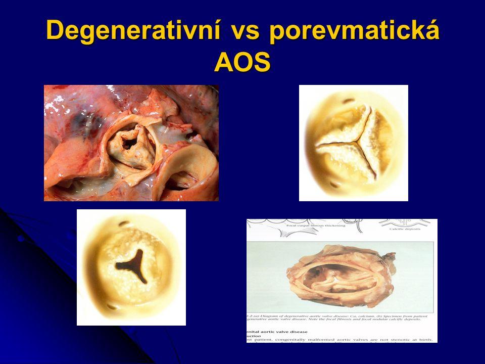 Degenerativní vs porevmatická AOS
