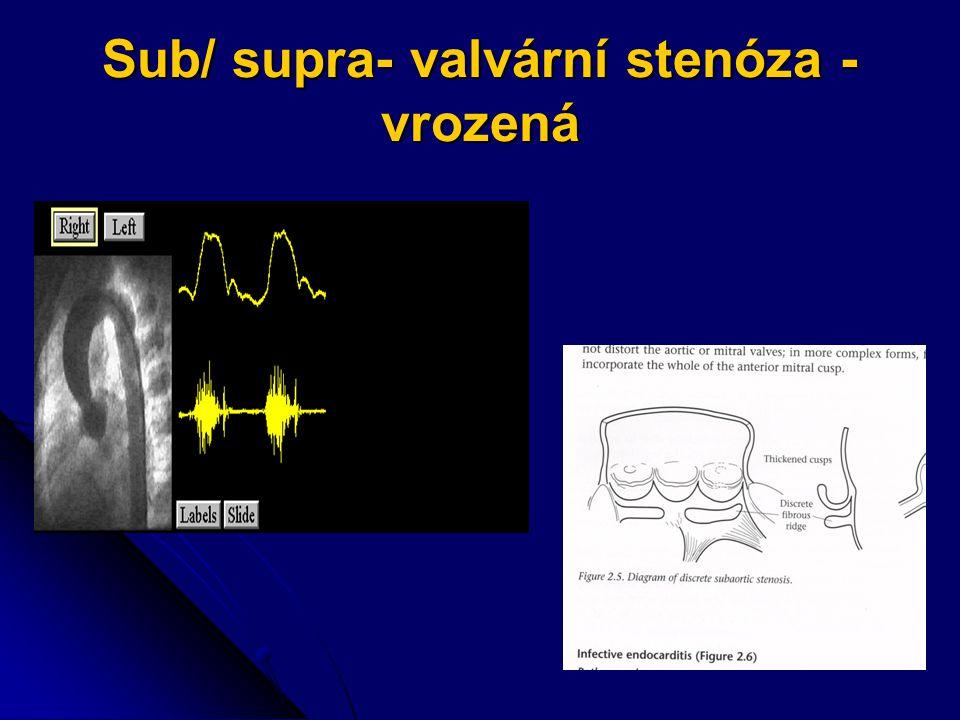 RTG S+P Koncentrická hypertrofie LK Koncentrická hypertrofie LK Dilatace bulbu a případně i vzestupné aorty –prominence aortálního knoflíku Dilatace bulbu a případně i vzestupné aorty –prominence aortálního knoflíku Ev.přítomnost kalcifikací v aortálním ústí Ev.přítomnost kalcifikací v aortálním ústí