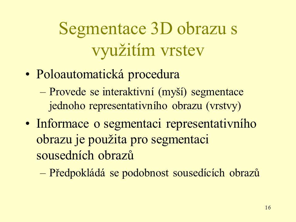 16 Segmentace 3D obrazu s využitím vrstev Poloautomatická procedura –Provede se interaktivní (myší) segmentace jednoho representativního obrazu (vrstvy) Informace o segmentaci representativního obrazu je použita pro segmentaci sousedních obrazů –Předpokládá se podobnost sousedících obrazů