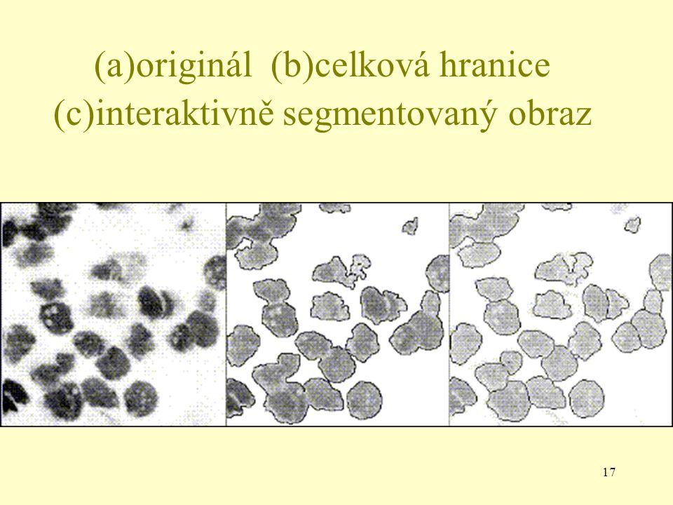 17 (a)originál (b)celková hranice (c)interaktivně segmentovaný obraz
