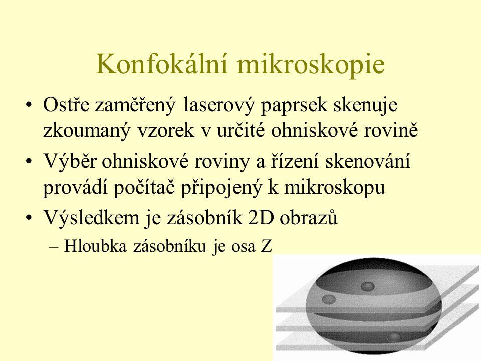 3 Schéma konfokálního mikroskopu