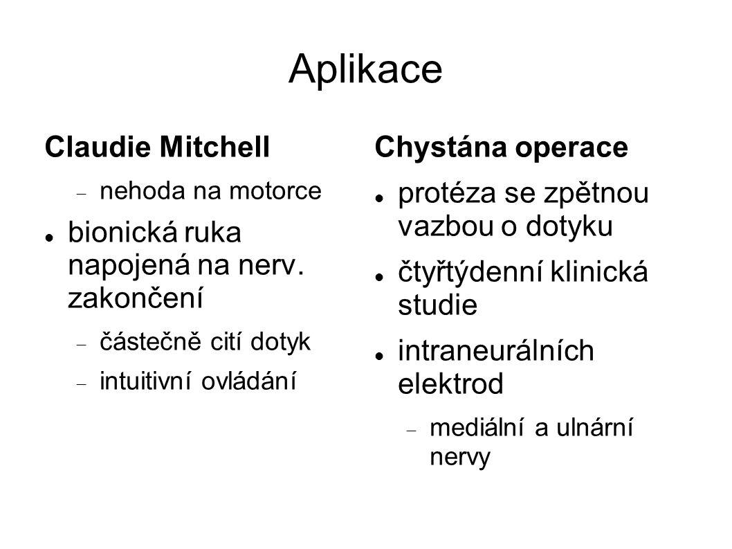 Aplikace Claudie Mitchell  nehoda na motorce bionická ruka napojená na nerv.
