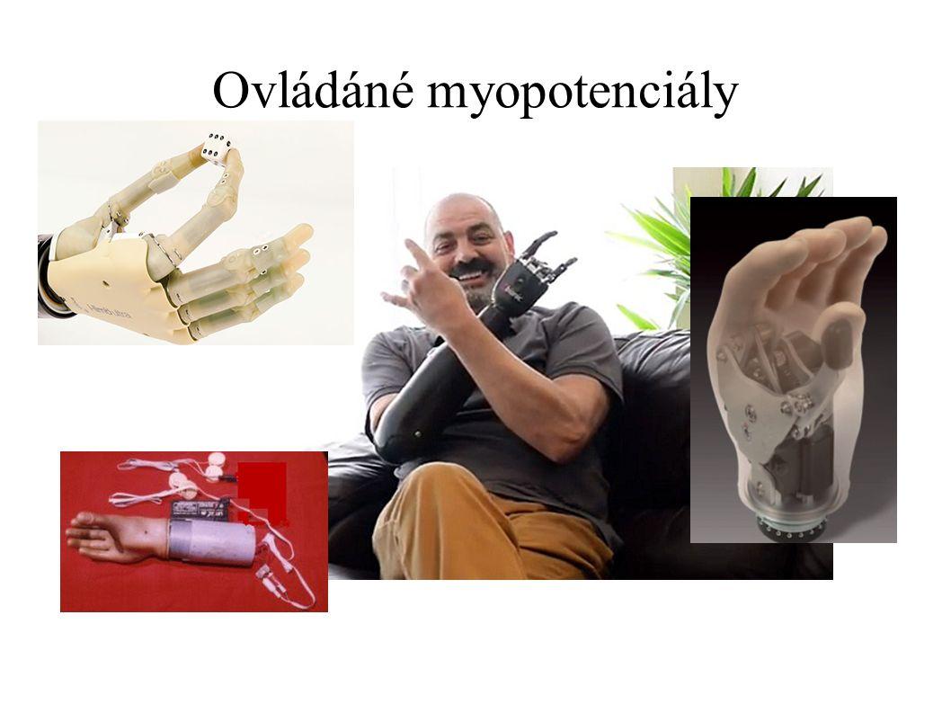 Ovládáné myopotenciály
