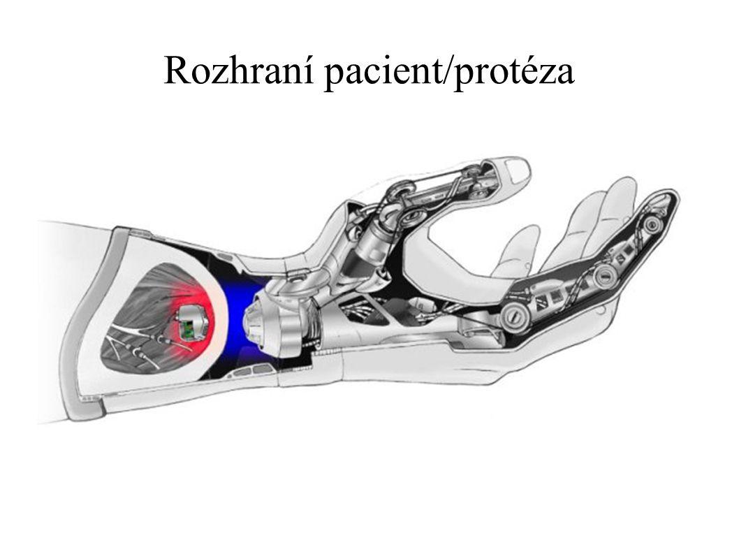Rozhraní pacient/protéza