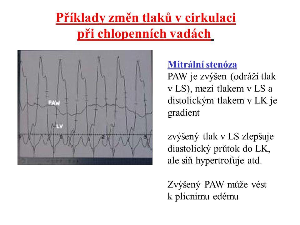 Příklady změn tlaků v cirkulaci při chlopenních vadách Mitrální stenóza PAW je zvýšen (odráží tlak v LS), mezi tlakem v LS a distolickým tlakem v LK j