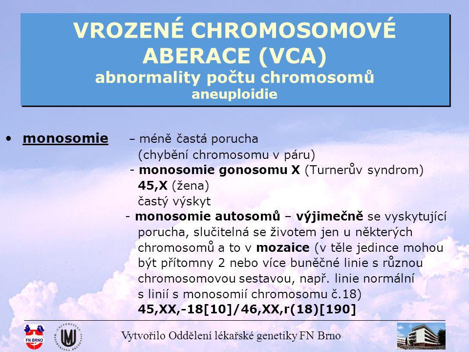 Vytvořilo Oddělení lékařské genetiky FN Brno VROZENÉ CHROMOSOMOVÉ ABERACE (VCA) abnormality počtu gonosomů Turnerův syndrom Turnerův syndrom 45,X