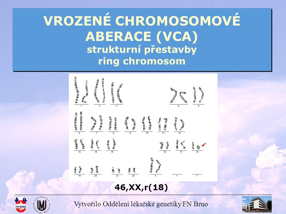 Vytvořilo Oddělení lékařské genetiky FN Brno VROZENÉ CHROMOSOMOVÉ ABERACE (VCA) strukturní přestavby ring chromosom 46,XX,r(18)