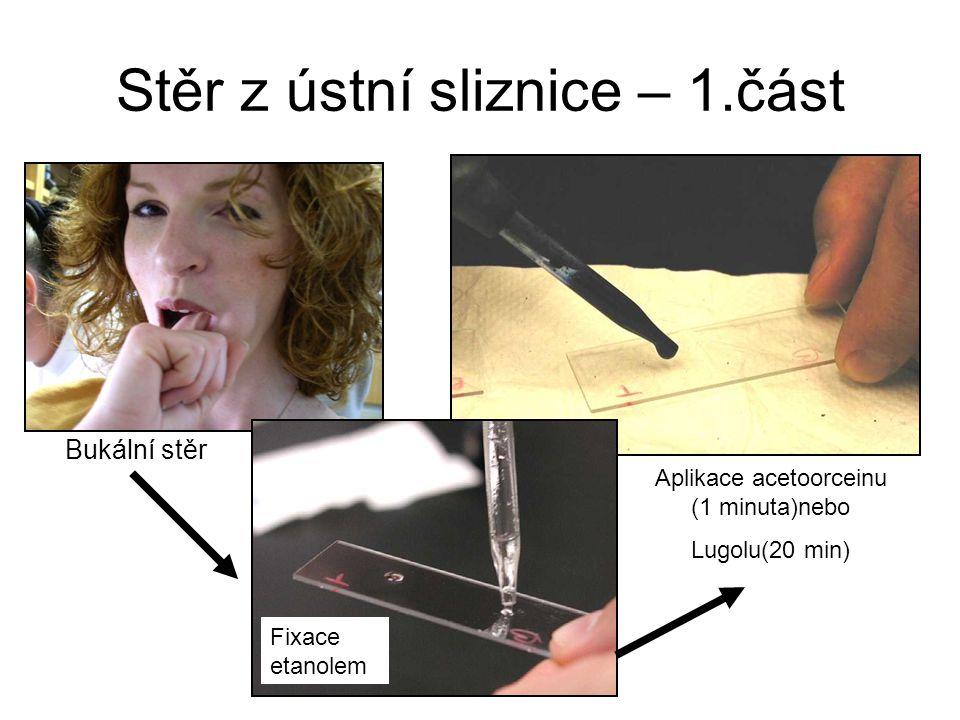 Stěr z ústní sliznice – 1.část Bukální stěr Fixace etanolem Aplikace acetoorceinu (1 minuta)nebo Lugolu(20 min)