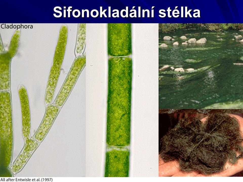 Sifonokladální stélka Ulothrix zonata