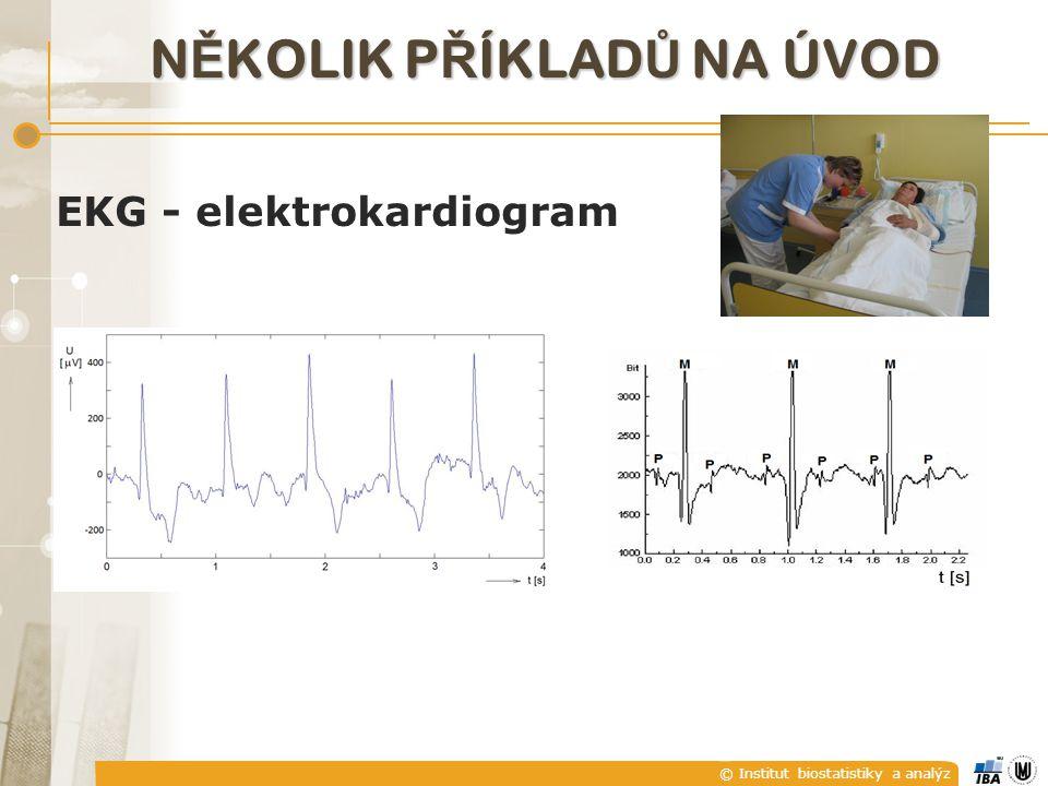 © Institut biostatistiky a analýz EKG - elektrokardiogram N Ě KOLIK P Ř ÍKLAD Ů NA ÚVOD