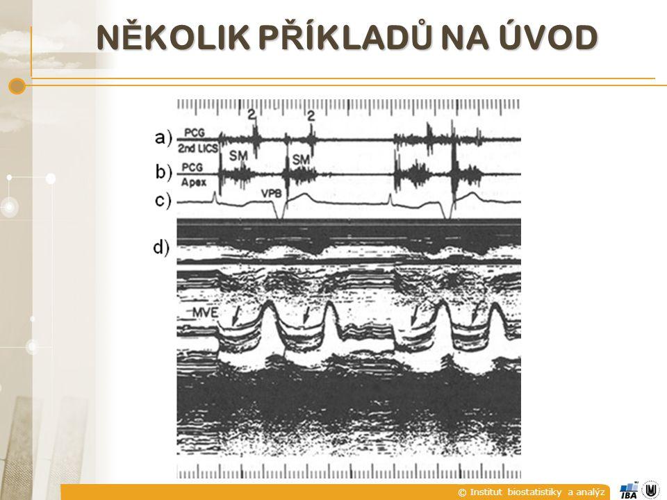 © Institut biostatistiky a analýz kardiotokogram N Ě KOLIK P Ř ÍKLAD Ů NA ÚVOD