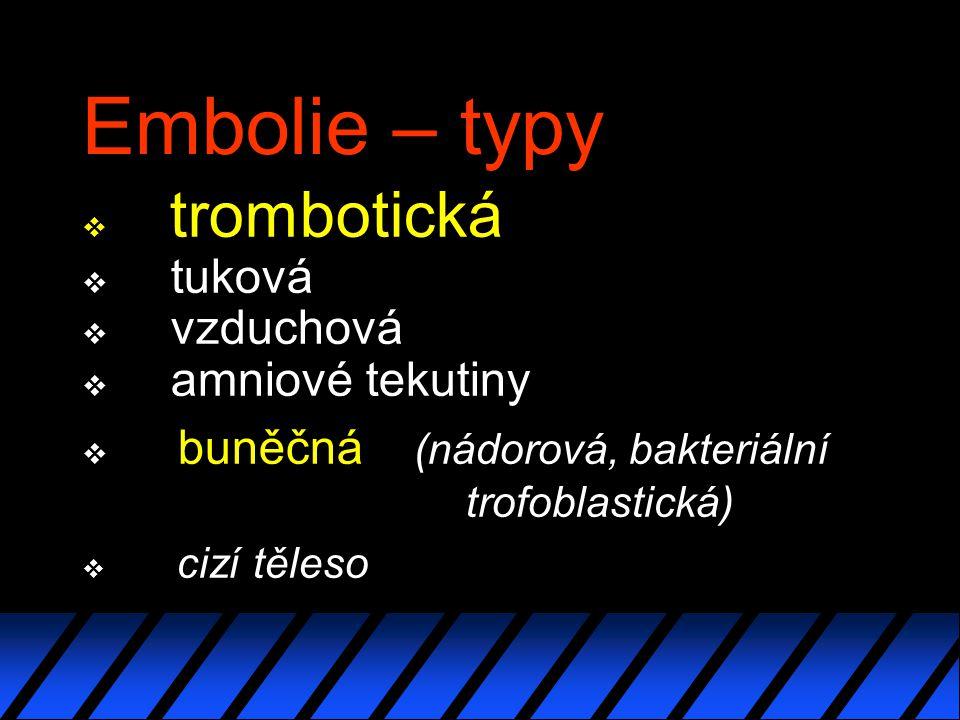Embolie – typy v trombotická v tuková v vzduchová v amniové tekutiny v buněčná (nádorová, bakteriální trofoblastická) v cizí těleso