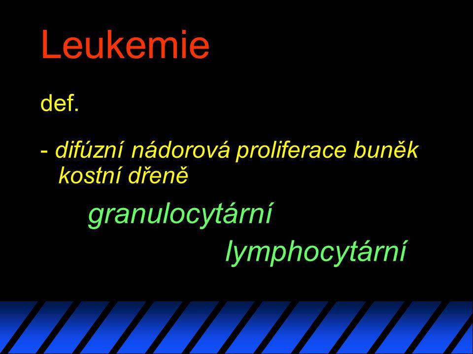 Leukemie def. - difúzní nádorová proliferace buněk kostní dřeně granulocytární lymphocytární