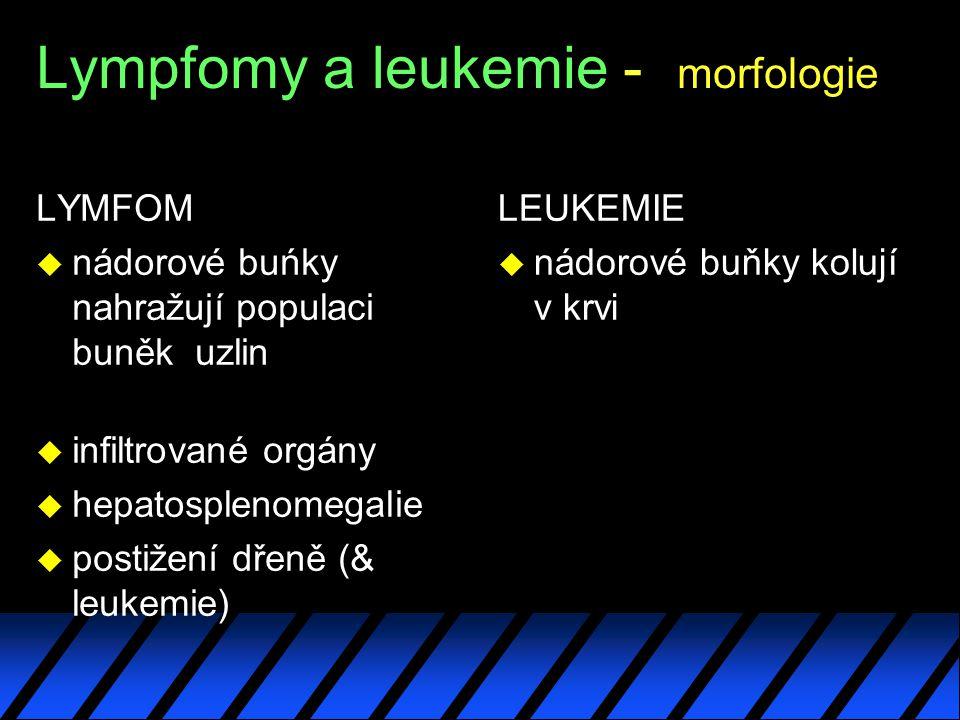 Lympfomy a leukemie - morfologie LYMFOM u nádorové buńky nahražují populaci buněk uzlin u infiltrované orgány u hepatosplenomegalie u postižení dřeně (& leukemie) LEUKEMIE u nádorové buňky kolují v krvi
