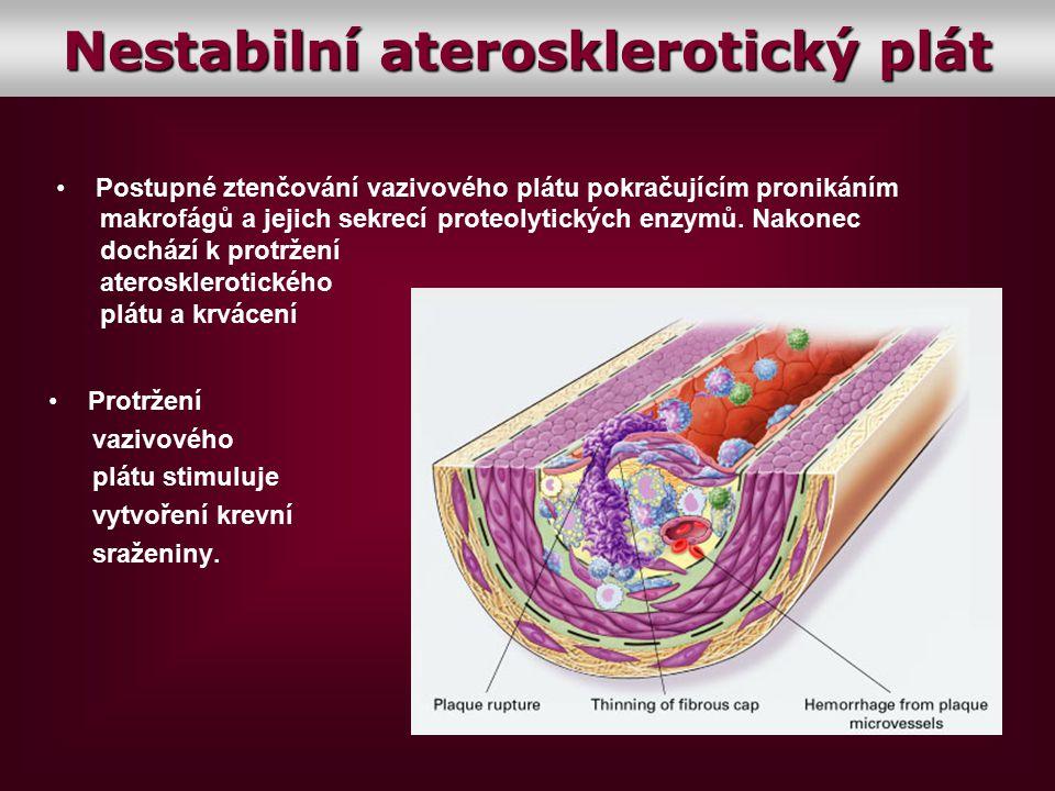 Protržení vazivového plátu stimuluje vytvoření krevní sraženiny. Postupné ztenčování vazivového plátu pokračujícím pronikáním makrofágů a jejich sekre