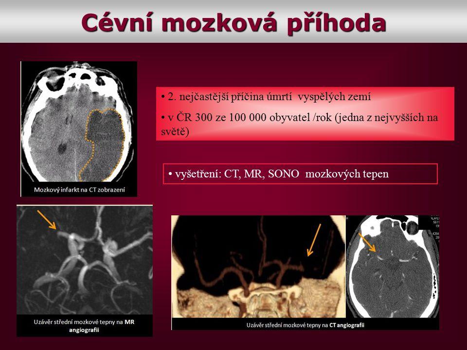 Cévní mozková příhoda 2. nejčastější příčina úmrtí vyspělých zemí v ČR 300 ze 100 000 obyvatel /rok (jedna z nejvyšších na světě) vyšetření: CT, MR, S