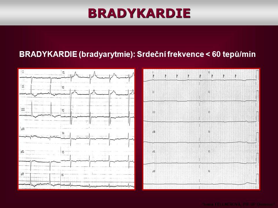 BRADYKARDIE (bradyarytmie): Srdeční frekvence < 60 tepů/min *Ivana FELLNEROVÁ, PřF UP Olomouc*BRADYKARDIE
