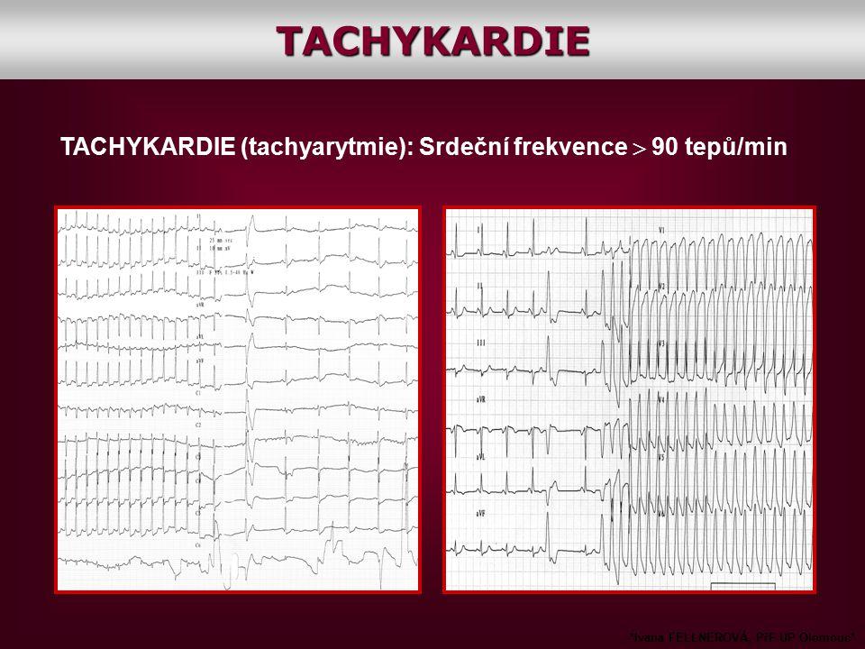 TACHYKARDIE (tachyarytmie): Srdeční frekvence  90 tepů/min *Ivana FELLNEROVÁ, PřF UP Olomouc*TACHYKARDIE
