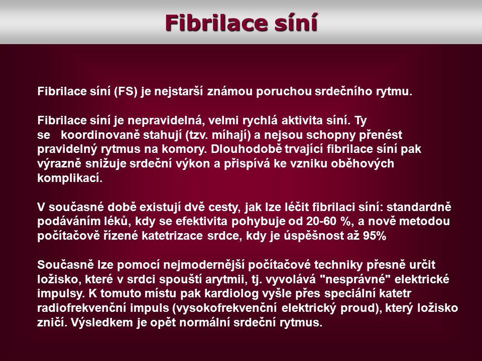 Fibrilace síní Fibrilace síní (FS) je nejstarší známou poruchou srdečního rytmu. Fibrilace síní je nepravidelná, velmi rychlá aktivita síní. Ty se koo