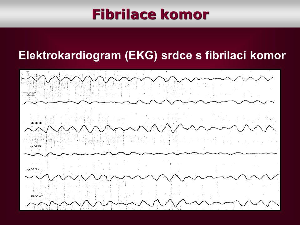 Elektrokardiogram (EKG) srdce s fibrilací komor Fibrilace komor