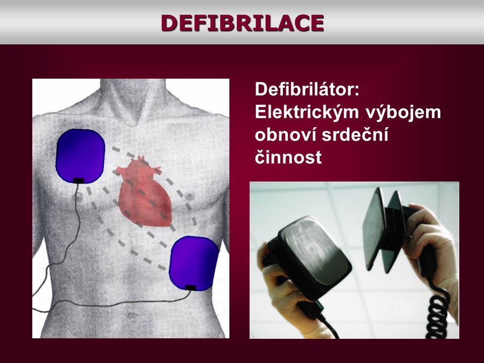 DEFIBRILACE Defibrilátor: Elektrickým výbojem obnoví srdeční činnost