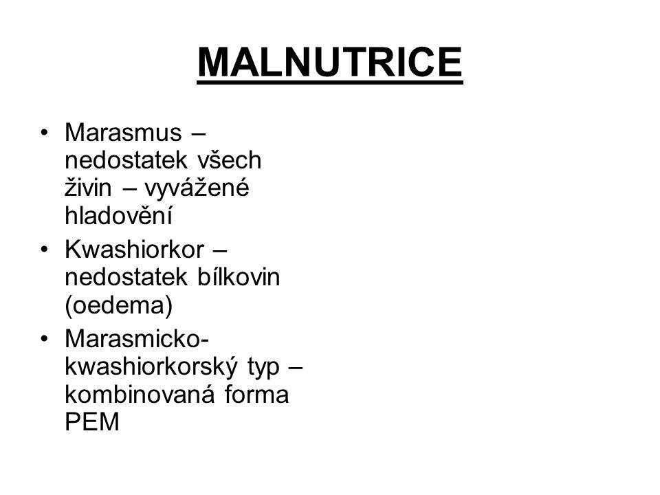 MALNUTRICE Marasmus – nedostatek všech živin – vyvážené hladovění Kwashiorkor – nedostatek bílkovin (oedema) Marasmicko- kwashiorkorský typ – kombinov