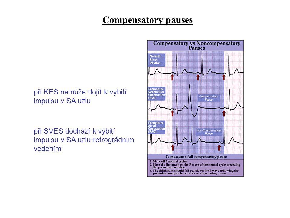 Compensatory pauses při SVES dochází k vybití impulsu v SA uzlu retrográdním vedením při KES nemůže dojít k vybití impulsu v SA uzlu