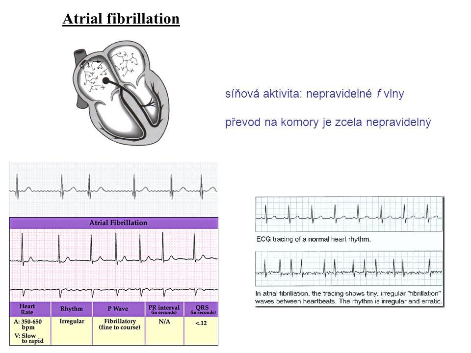 Atrial fibrillation síňová aktivita: nepravidelné f vlny převod na komory je zcela nepravidelný