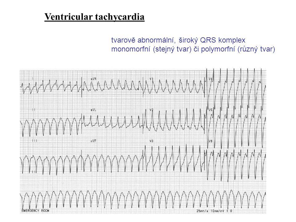 Ventricular tachycardia tvarově abnormální, široký QRS komplex monomorfní (stejný tvar) či polymorfní (různý tvar)