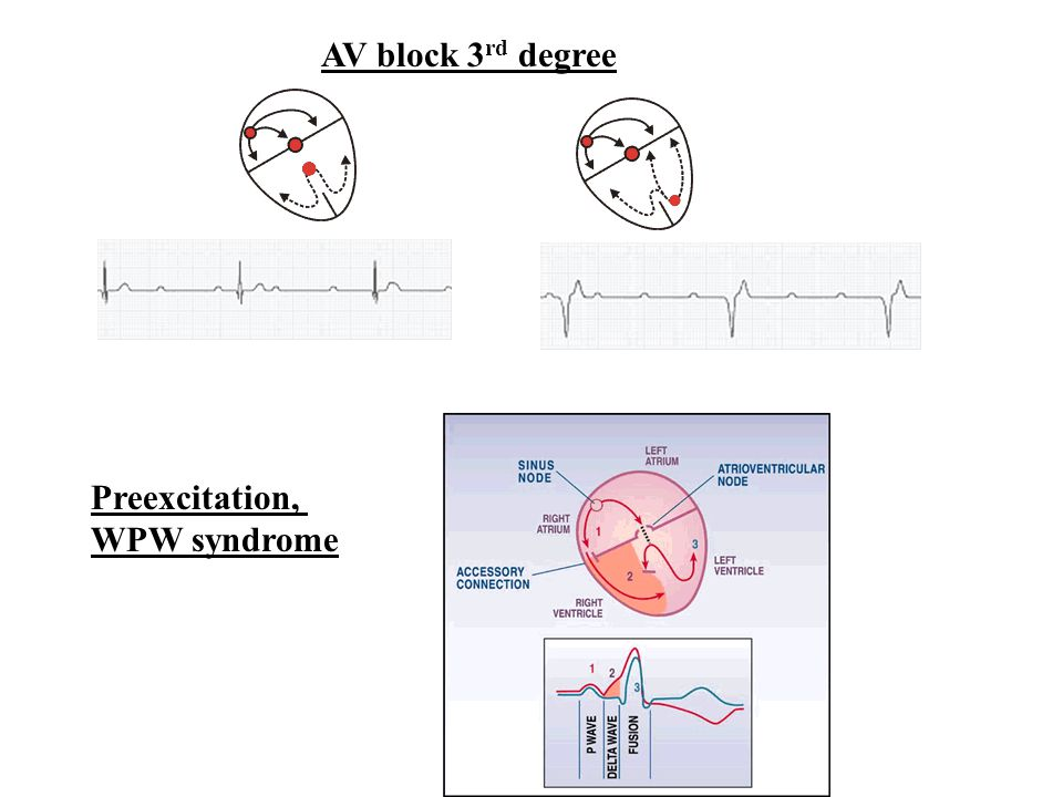 AV block 3 rd degree Preexcitation, WPW syndrome