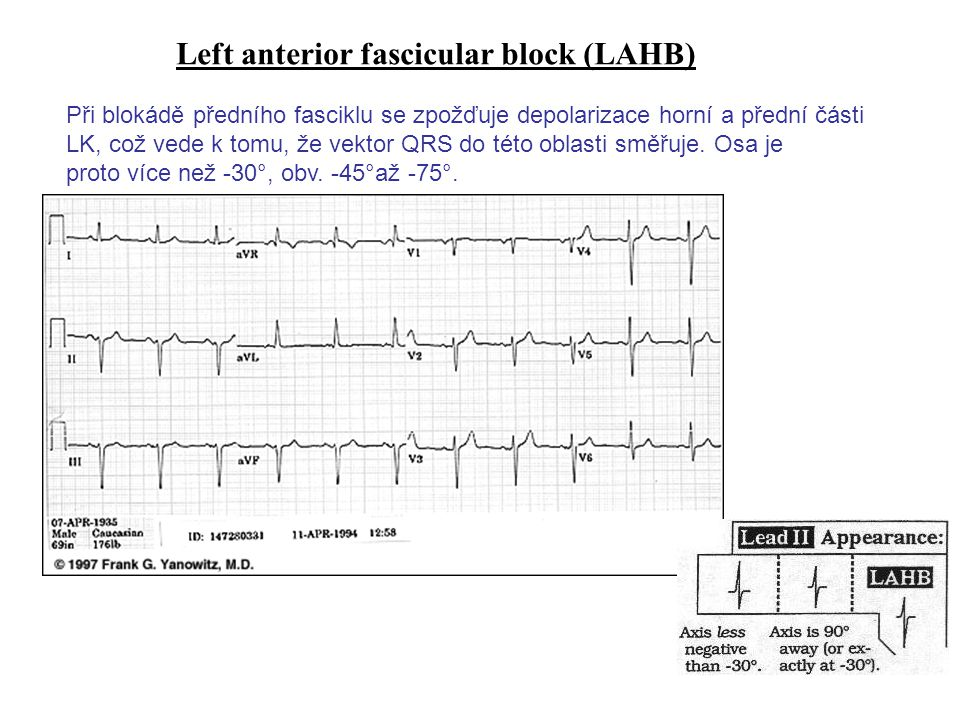 Ectopic Atrial Tachycardia: 1 Electrocardiogram obtained in a 1-year-old s/p repair of tetralogy of Fallot with complete right bundle branch block and left anterior hemiblock.