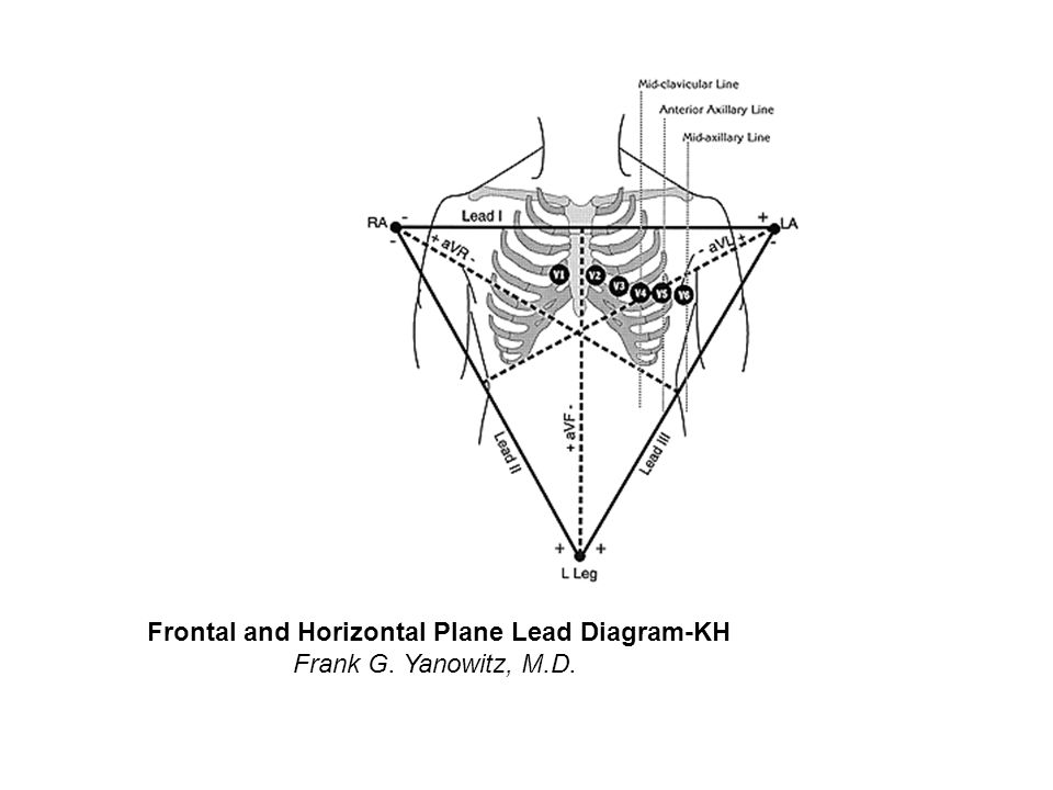 Frontal Plane QRS Axis = +150 degrees (RAD)-KH Frank G.