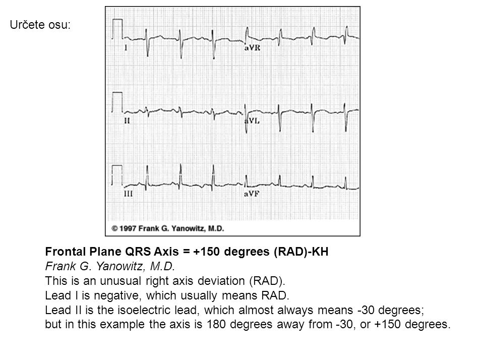 Frontal Plane QRS Axis = -45 degrees-KH Frank G. Yanowitz, M.D.