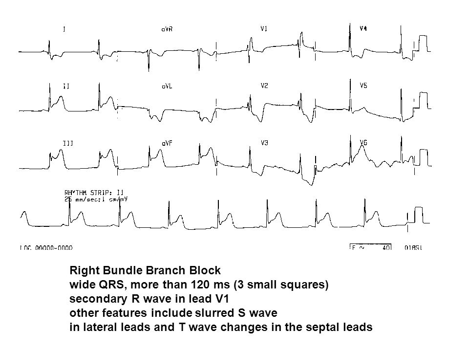 Right Bundle Branch Block wide QRS, more than 120 ms (3 small squares) secondary R wave in lead V1 other features include slurred S wave in lateral le