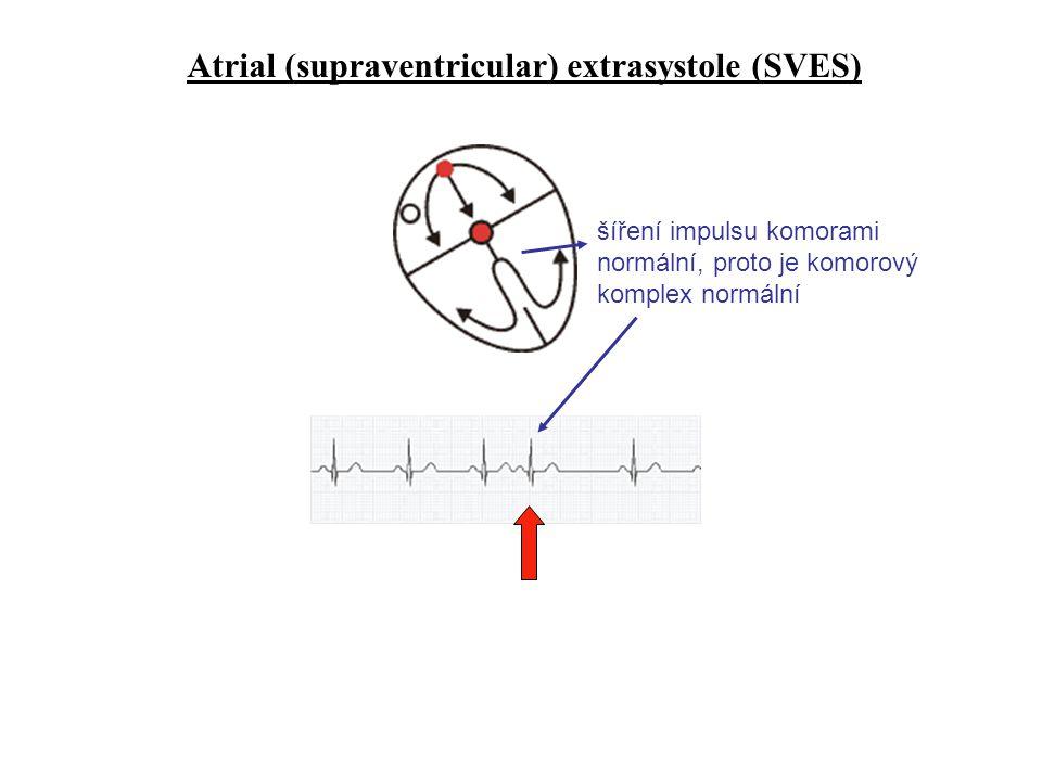 Atrial (supraventricular) extrasystole (SVES) šíření impulsu komorami normální, proto je komorový komplex normální