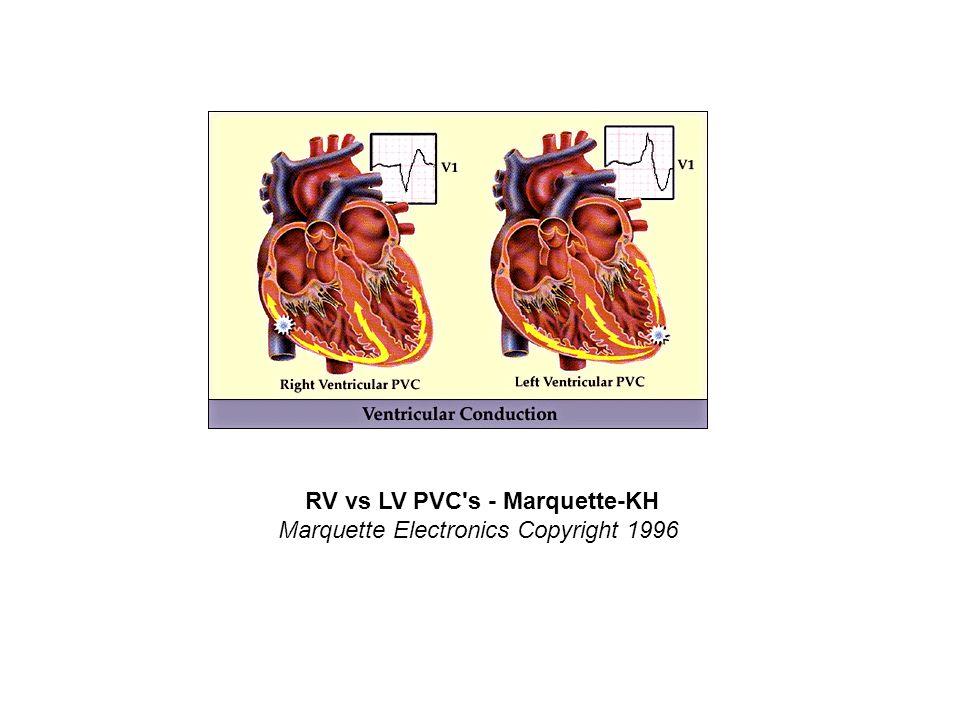 RV vs LV PVC's - Marquette-KH Marquette Electronics Copyright 1996