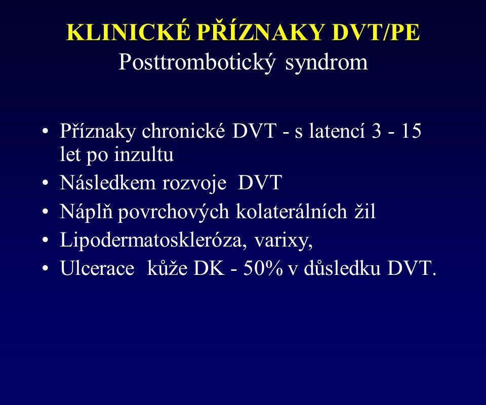 Příznaky chronické DVT - s latencí 3 - 15 let po inzultu Následkem rozvoje DVT Náplň povrchových kolaterálních žil Lipodermatoskleróza, varixy, Ulcera